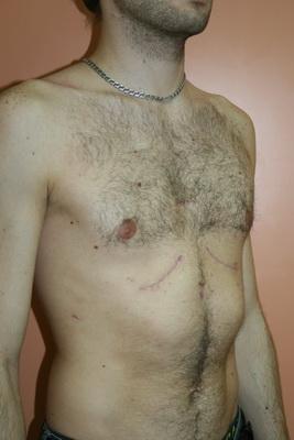 ФОТО 3. У многих девушек с воронкообразной деформацией грудной клетки ВДГК(