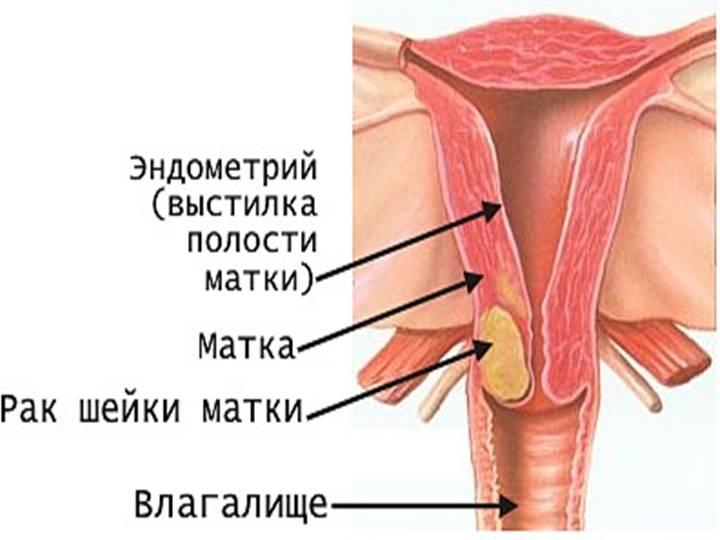 kak-stavit-piyavki-vo-vlagalishe